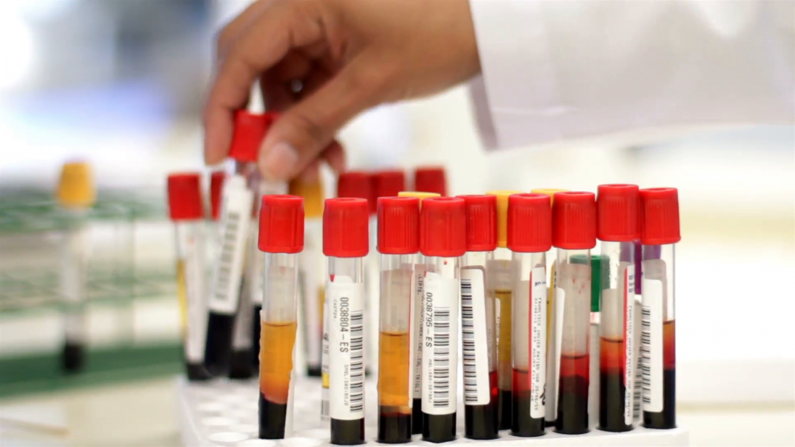 Blood test detects brain