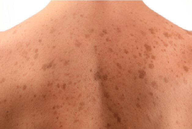 Sunspots on Skin