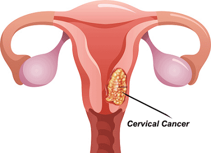 New therapy completely clears HPV in one-third of cervical