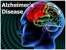 help fight Alzheimer