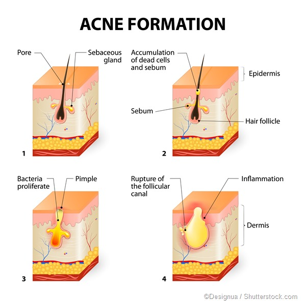illustration of acne formation in skin