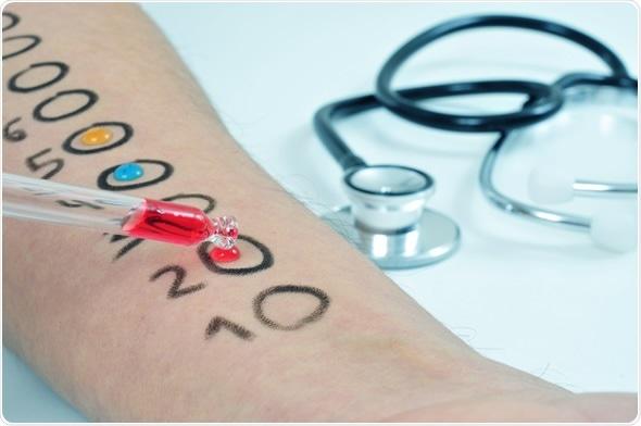 Skin allergy test. Image Copyright: nito / Shutterstock