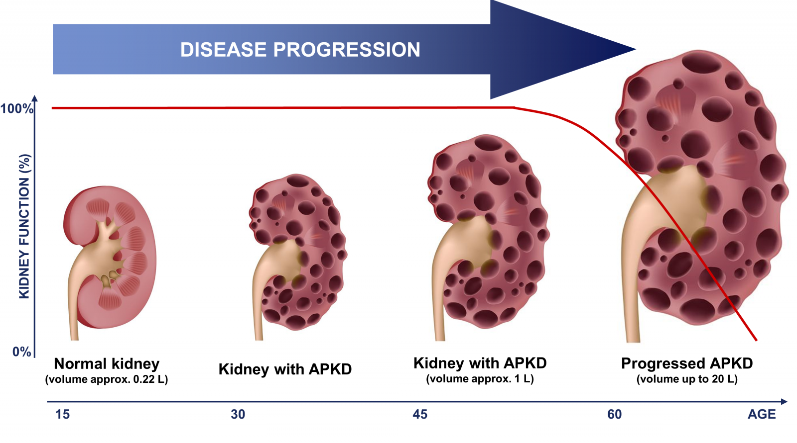 Effective Polycystic Kidney Disease Treatment!