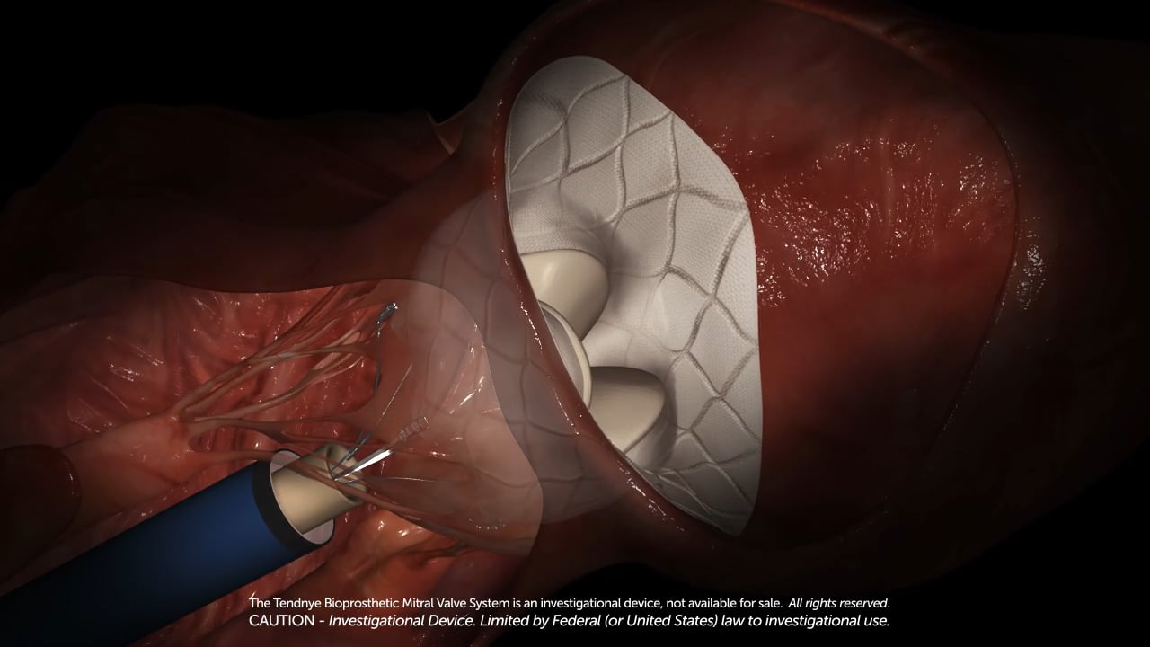 transcatheter-mitral