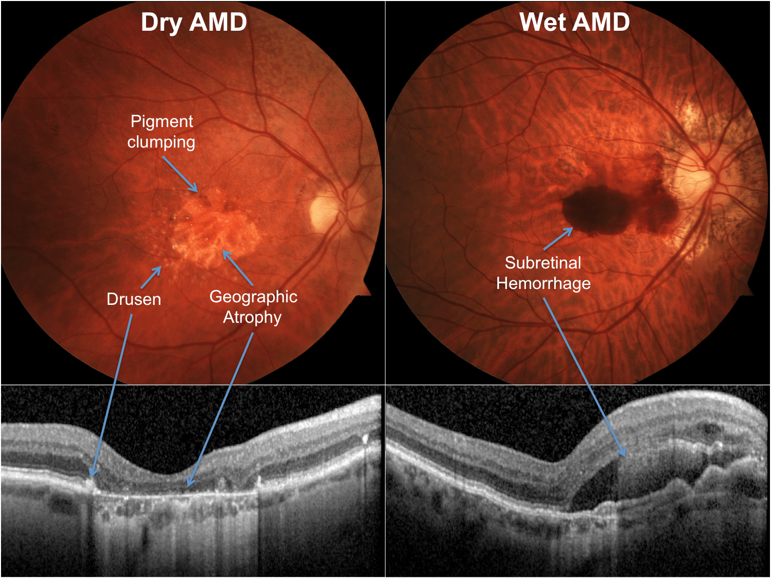 Amd Or Age Related Macular Degeneration Researchers Identify Vitronectin As New Drug Target For Dry Age Related Macular Degeneration Thailand Medical News