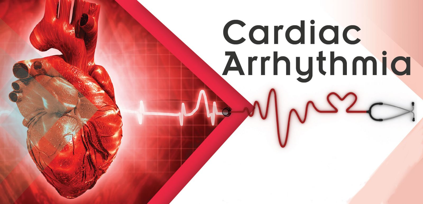 Research On Arrhythmia Could Reduce The Risk Of Sudden Cardiac ...