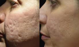 Latest Aesthetics Trend In Asia Bellafill The Only Us Fda Permanent Filler Thailand Medical News