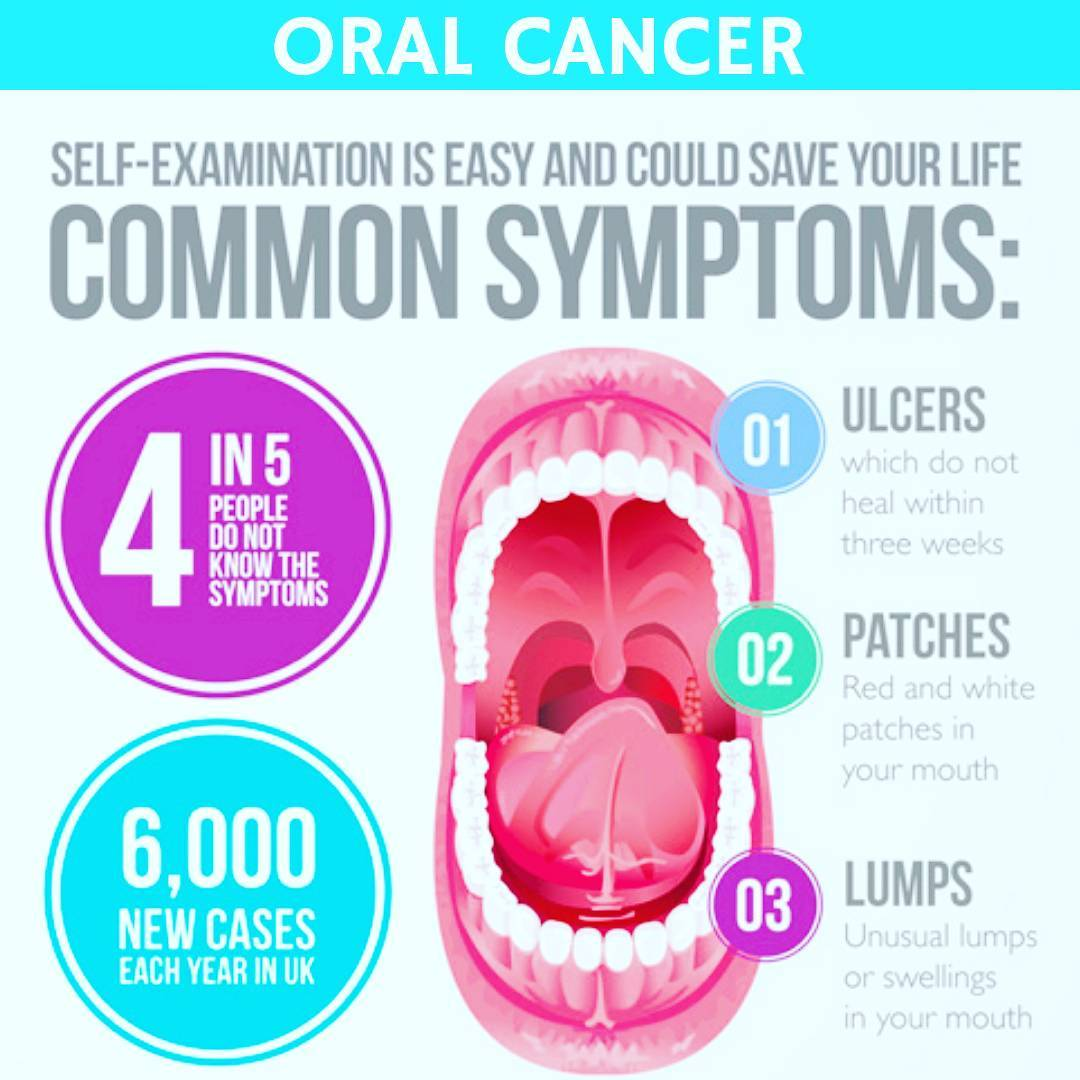 DIY Guide For Checking For Mouth Or Oral Cancer - Thailand Medical News