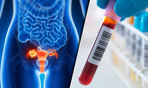 Ovarian Cancer New Rapid Diagnostic Tests To Detect Ovarian Cancer More Accurately Developed By Scientist From Finland Thailand Medical News