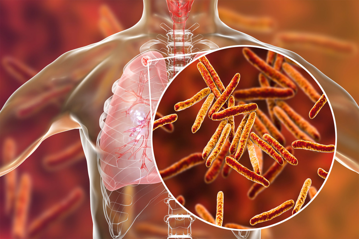 Study Finds Tocilizumab, An Anti-Arthritis Drug Stops TB From ...
