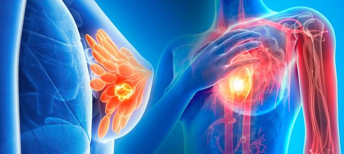 Las dietas altas en el aminoácido leucina alimentan el medicamento contra el cáncer de mama ...
