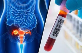 Cancer Thailand Medical News